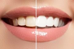 1回¥3900〜でできる歯のお手軽ホワイトニングの方法