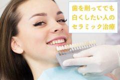 歯を削ってでも白くしたい人のセラミック治療まとめ