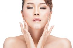 肌のリフトアップ方法を一挙紹介! 自宅でできる方法からクリニック治療まで